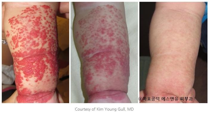 혈관종의 레이저치료-마포공덕에스앤유피부과1.jpg