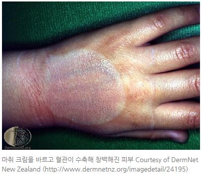 화염상모반 혈관종 마취크림-마포공덕 에스앤유피부과.jpg