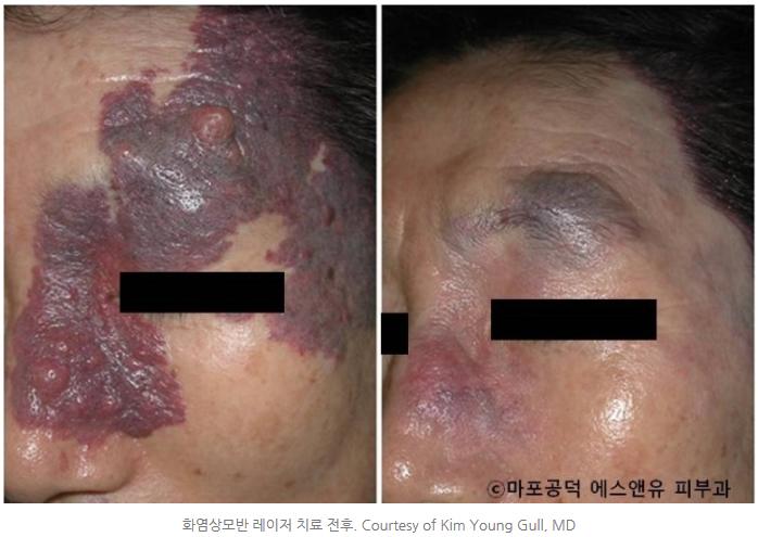 화염상모반의특징-마포공덕에스앤유피부과.jpg